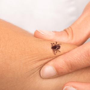 tick bite on skin