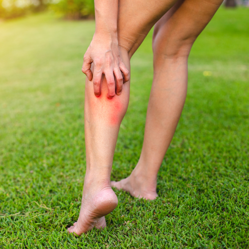 woman itching her legs from bug bites